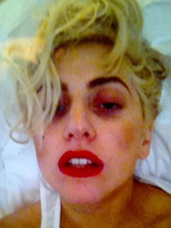 Lady Gaga Concussion Twitter Picture - P 2012